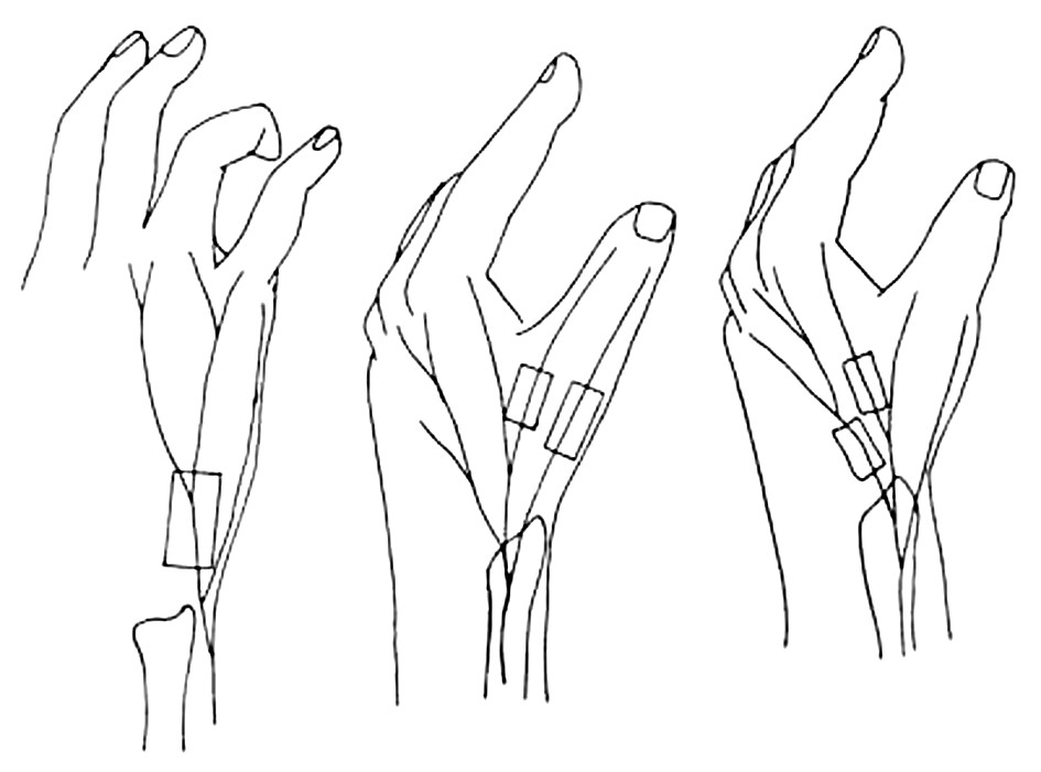 Fig. 2. Topography of the flap raising