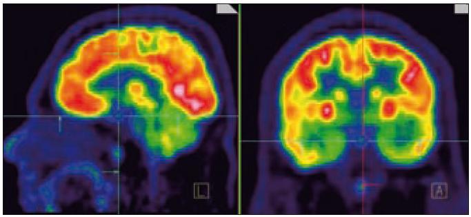PET mozku (sagitální a koronární řez). Fyziologicky vysoká akumulace FDG (fluorodeoxyglukózy) v mozkové kůře, bazálních gangliích, v lymfatické tkáni nosohltanu, svalovině jazyka. Drobné ložisko lehce vyšší akumulace radiofarmaka v hypofyzární stopce hodnoceno jako patologické.