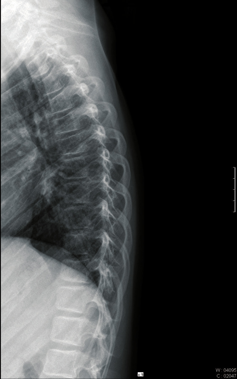 RTG vyšetření – zlomenina obratlového těla v oblasti Th3-6 a Th10-11