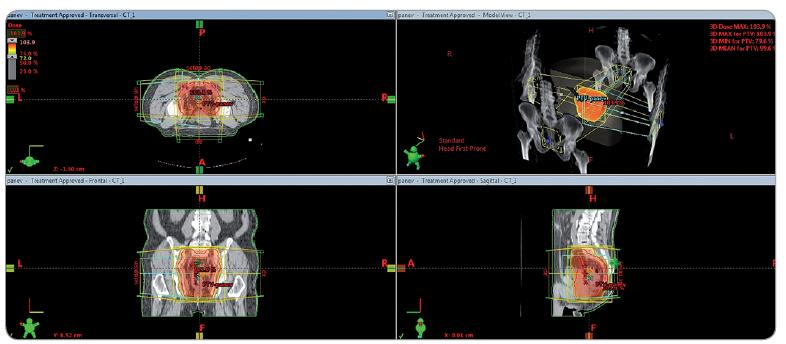 Izodózní plán předoperační radioterapie dolního rekta T3 N0 M0.