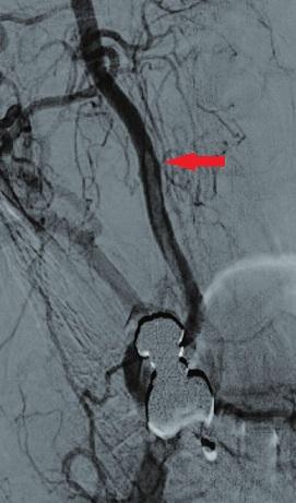 Angiografické zobrazení stenozy a volně vlajícího trombu Fig. 5: Angiography presenting the stenosis and the free-floating thrombus