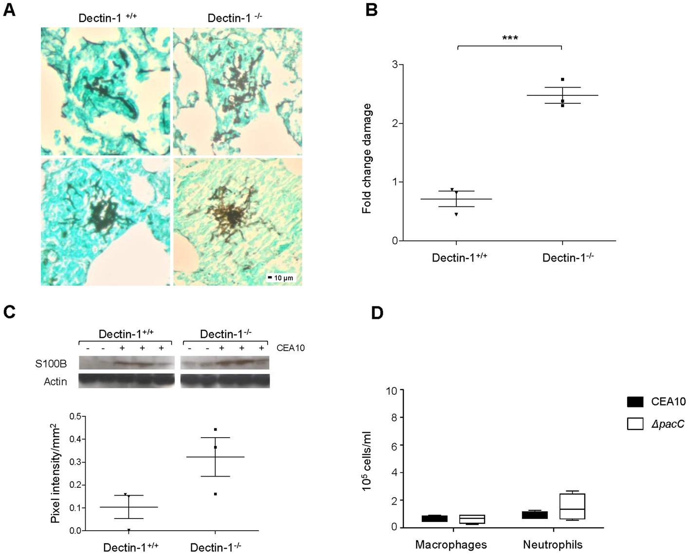 Internalisation and Dectin-1 protect murine pulmonary epithelia from <i>A. fumigatus</i>-mediated damage.