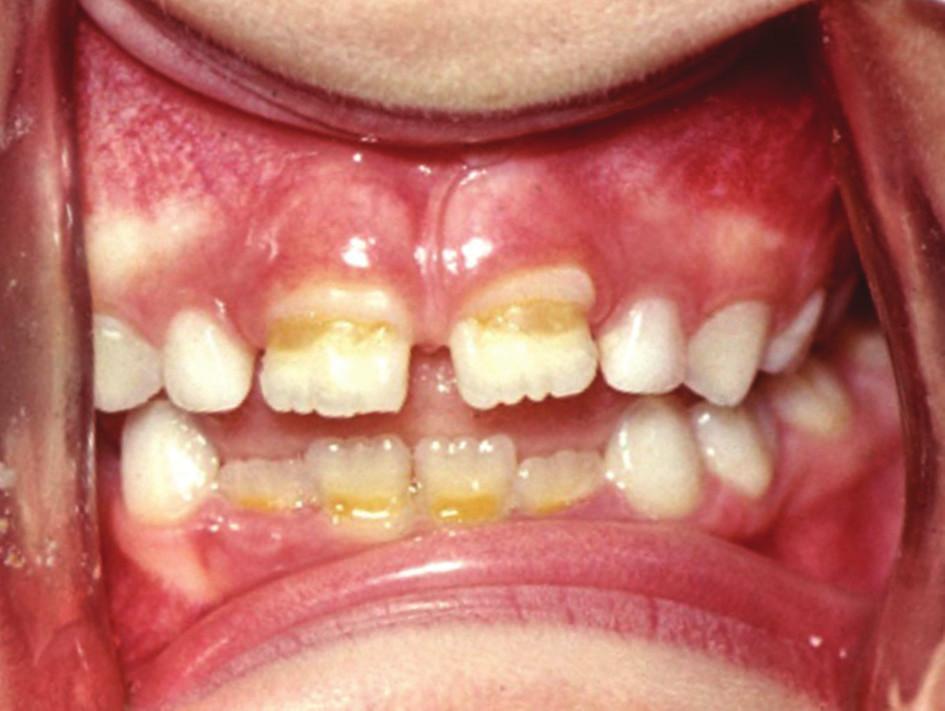 Poškození skloviny stálých řezáků po podávání tetracyklinových antibiotik v raném dětství