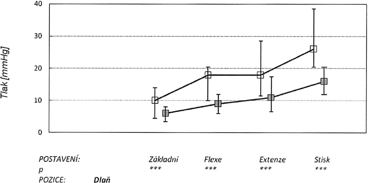 V grafu jsou znázorněny: medián, 25. a 75. percentil v úrovni dlaně distálně od karpálního tunelu v různých zátěžových pozicích ruky (základní neutrální postavení, maximální pasivní flexe, extenze a stisk). Horní křivka znázorňuje tlaky před protětím ligamenta, dolní po protětí. Graph 4. The graph depicts: the median, the 25th and 75th percentiles at the palm level of the tunnel during various stress positions of the hand (a basic neutral position, the maximum passive flexion, extension and a hand grip). The upper curve depicts pressure measurements prior to the ligament section, while the lower one those after the section procedure.