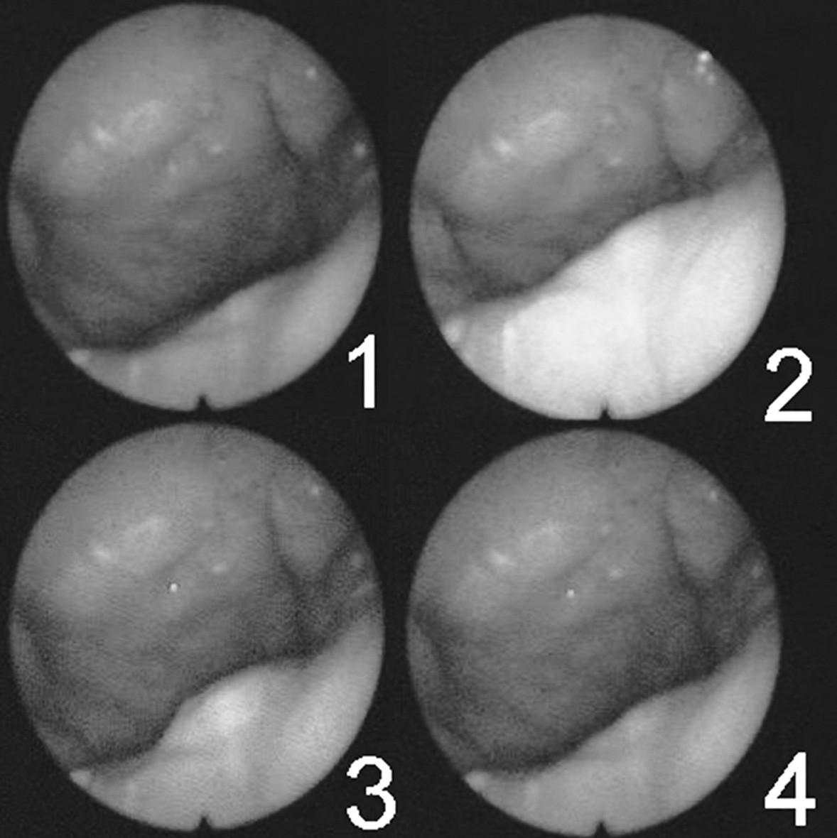 Série snímků zachycující pohyby velofaryngeálního uzávěru během artikulace (maximum uzávěru představuje číslo 3).
