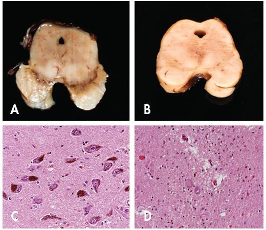 Porovnání nálezu u Parkinsonovy nemoci a normy. Patrná je výrazná atrofie mezencefala a dekolorací substantia nigra u pacienta s PN (B) ve srovnání se zdravou kontrolou (A). Mikroskopicky je pak zřetelná výrazná numerická atrofie pigmentovaných neuronů pars compacta substantiae nigrae u pacienta s PN (D) ve srovnání se zdravou kontrolou (C). Původní zvětšení 200x.