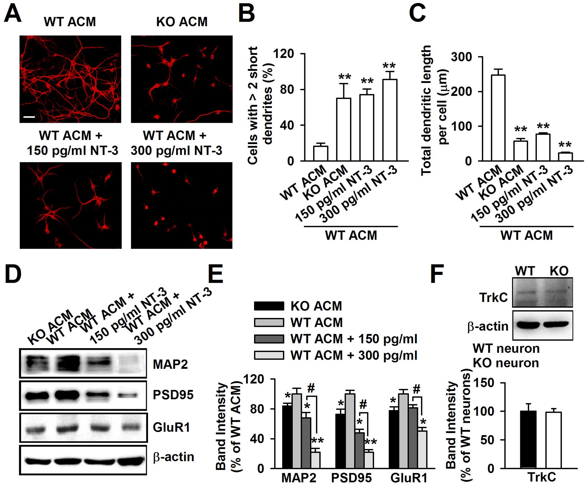 Excessive NT-3 was neurotoxic to neuronal development.