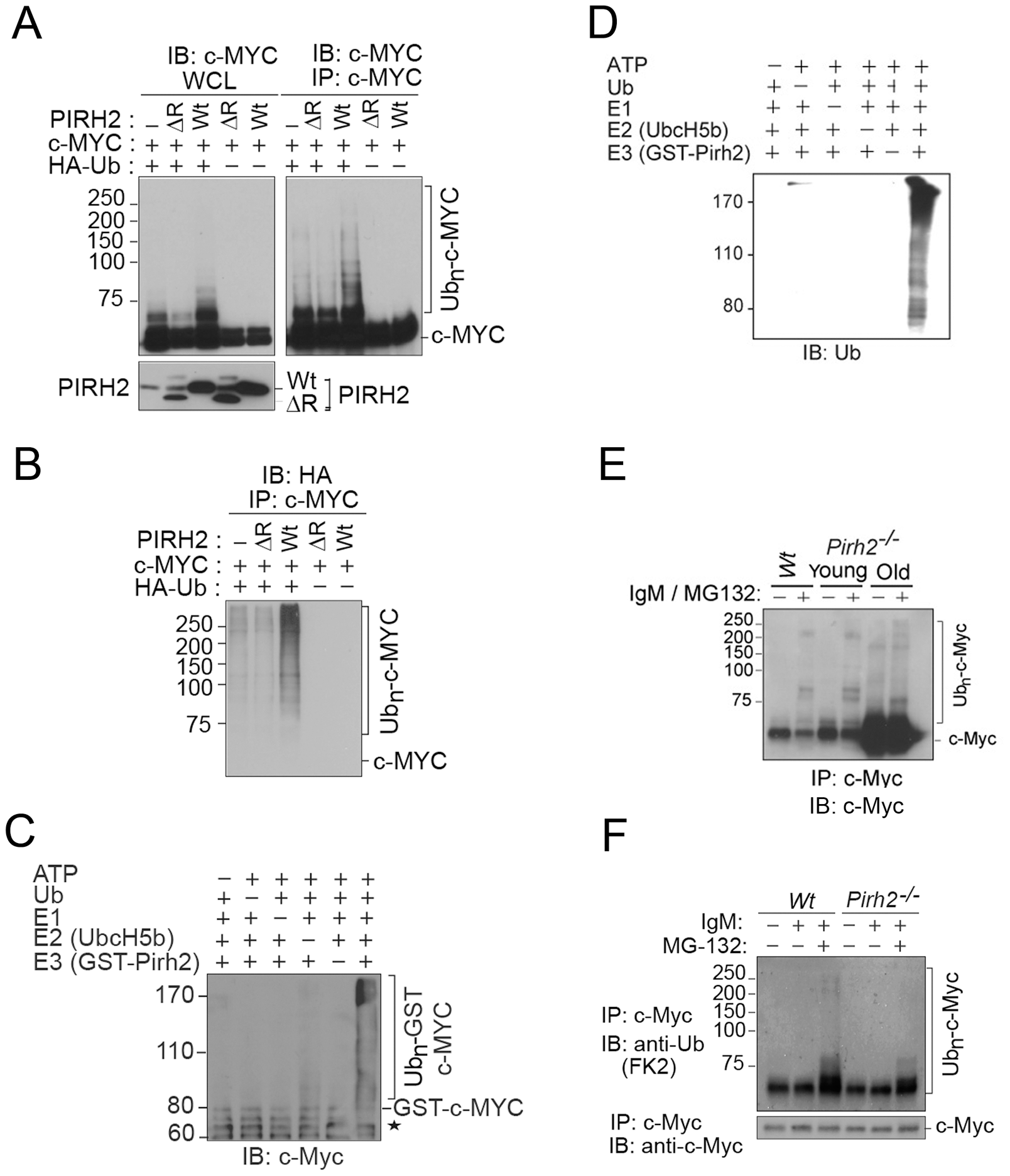 PIRH2 Polyubiquitylates c-MYC and Mediates Its Proteasomal Degradation.