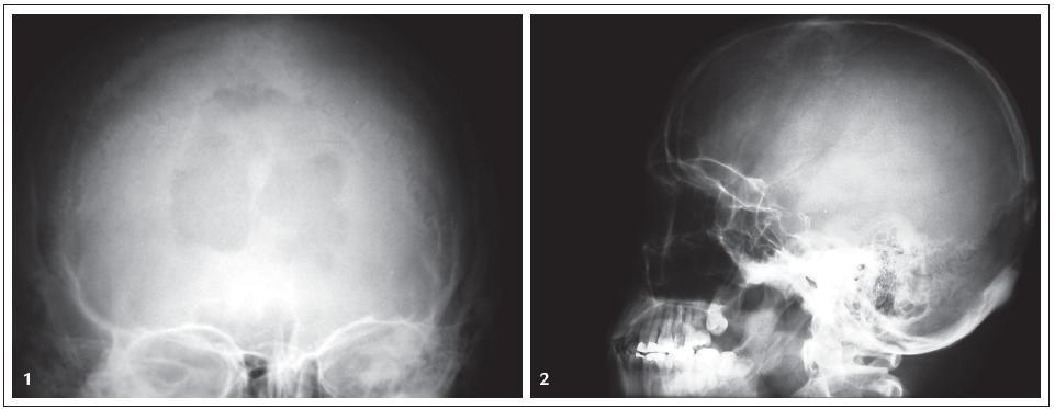 Obr. 1, 2. RTG snímek lebky, předozadní a bočná projekce: osteolýza kalvy okcipitálně u pacienta s histiocytózou z Langerhansových buněk.