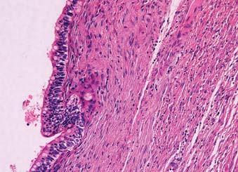 Dobře diferencovaná teratomová komponenta smíšeného germinálního tumoru. Zejména smíšené germinální nádory varlete dokáží zakládat morfologicky velmi variabilní metastázy. HE 100x.