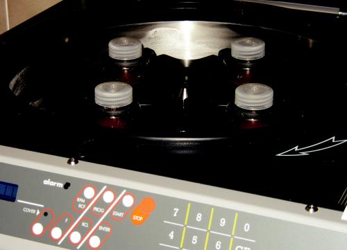 Suspenze izolovaných hepatocytů po opakované centrifugaci