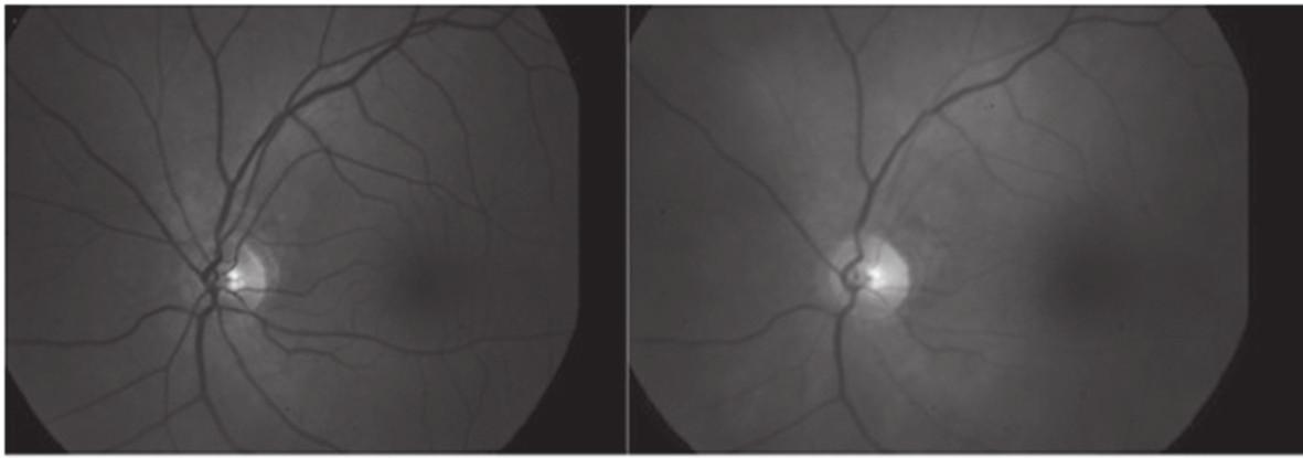 Porovnání obrázku fundu jednoho oka u totožného pacienta: vpravo obraz o vlnové délce 600 nm (arterie jsou výrazně tmavší než vény) a vlevo o vlnové délce 570 nm (arterie i vény mají téměř totožný vzhled)