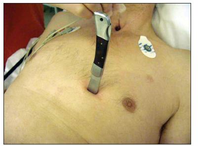Snímek pacienta na hale urgentního příjmu