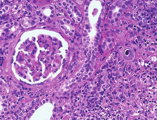 CMV infekce. Nápadně zvětšená buňka s jadernou inkluzí a s typickým perinukleárním halo (šipka) v nejisté lokalitě (HE, objektiv 40x).