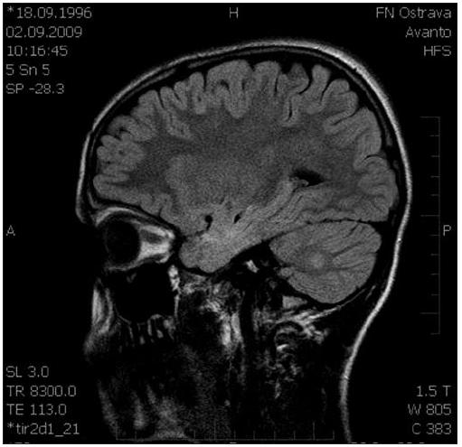 Sagitální řez CNS: MR FLAIR, ložisko zvýšené intenzity signálu pravé mozečkové hemisféry.