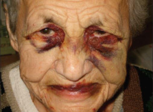 Jiný případ AL amyloidózy s krvácením do víček, ale i s krvácením na sliznicích úst.