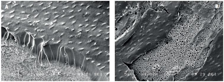 Spodní část kompozitní výplně bondované adhezivem ADP po odstranění skloviny a dentinu demineralizací a deproteinizací pomocí HCl a NaOCl: A) vrstva ADP s nedokonale vytvořenými pryskyřičnými tagy a drobnými bublinkami na rozhraní mezi kompozitním materiálem a vrstvou adheziva, B) rozsáhlé oblasti porozity na spodině vrstvy adheziva v kontaktu s kompozitním materiálem, zvětšení 1000x, SEM