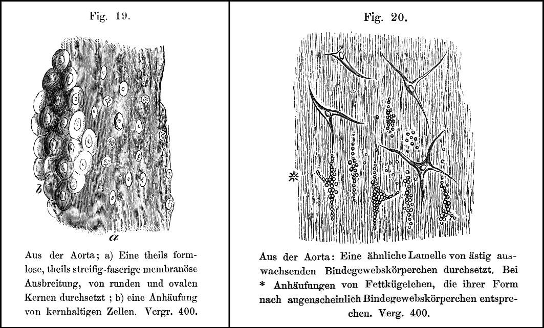 Histologické obrazy (dřevoryty) intimálních lézí aorty.  Vlevo nakupení jader v pseudomembráně, vpravo vazivové buňky obsahující tukové kapénky [?pěnité buňky]