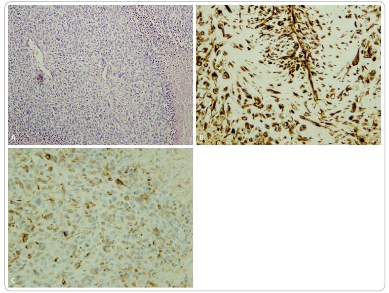 Histologie maligní formy cystosarkoma phyllodes. A. Sarkomatoidní architektura, jaderné monstrozity, v pravém zevním a levém dolním okraji nekróza. Barvení HE, zvětšeno 100krát. B. Imunohistochemická reakce prokazující vimentin: mezenchymová složka nádoru, zvětšeno 100krát. C. Imunohistochemické reakce prokazující cytokeratin: epitelová složka nádoru, zvětšeno 100krát.