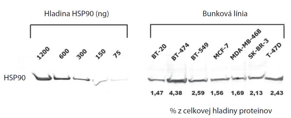 Celková hladina HSP90 v bunkových líniách karcinómu prsníka vyjadrená ako procento HSP90 z celkovej hladiny proteínov v bunke.
