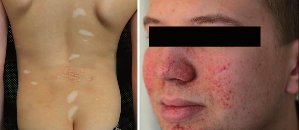 Kožní postižení u tuberózní sklerózy.