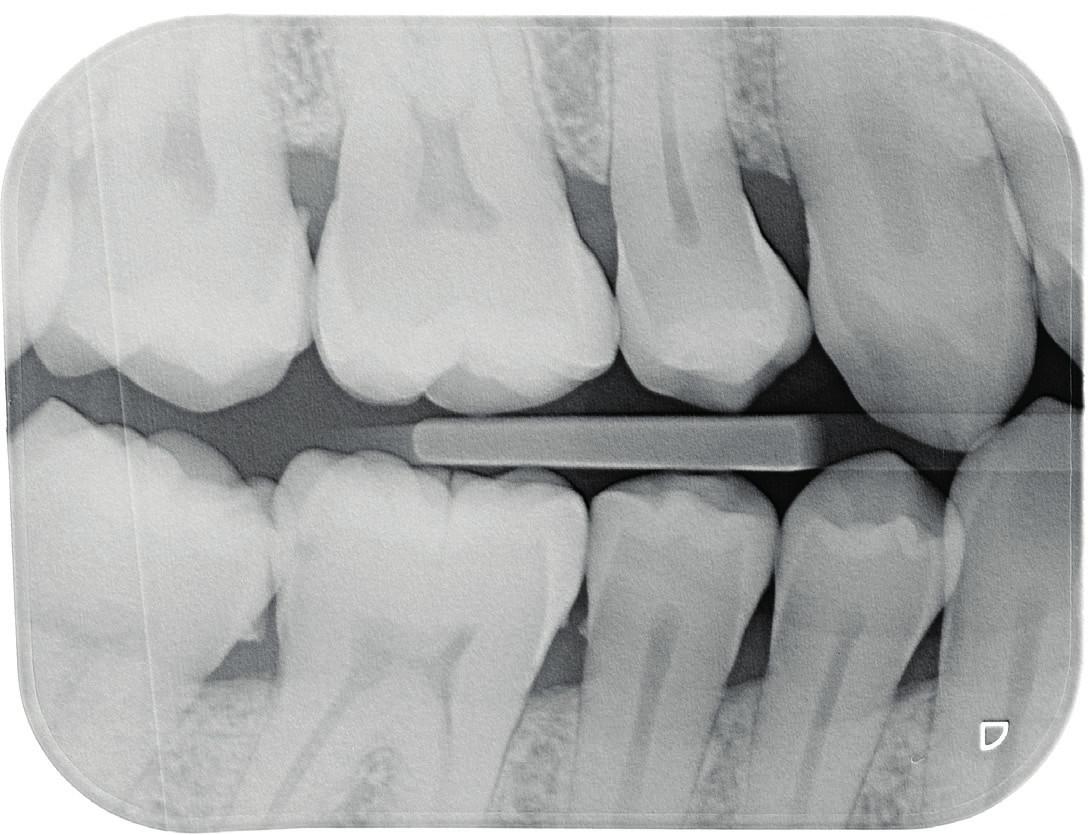 Na rentgenovém snímku bite-wing nelze odečíst přítomnost kazu, je-li demineralizace tvrdých zubních tkání menší než 30 %