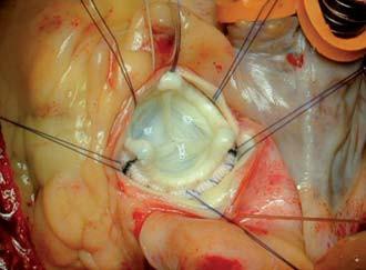Obr. 9a, 9b. Náhrada stenotické aortální chlopně bioprotézou u pacienta s jaterní cirhózou.