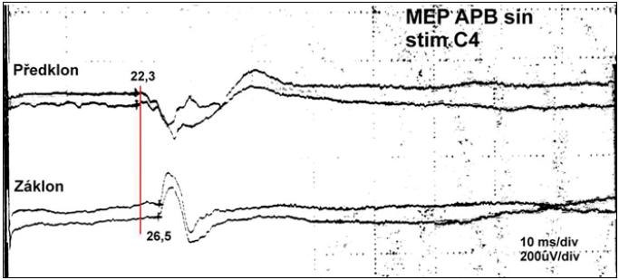 Záznam změny průběhu MEP při předklonu a záklonu u nemocného s RA atlanto-axiálním dislokací 9 mm.