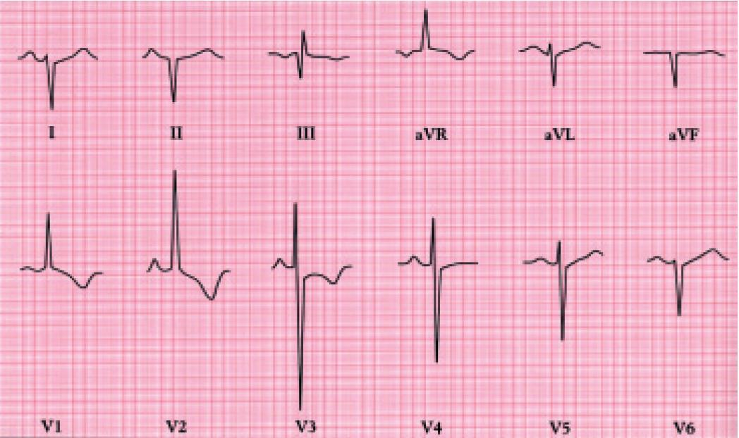 EKG u těžké stenóz plicnice ukazuje hluboký kmit S ve svodu I, vysoký kmit R ve V1,2 a inverze vln T v pravých hrudních svodech.