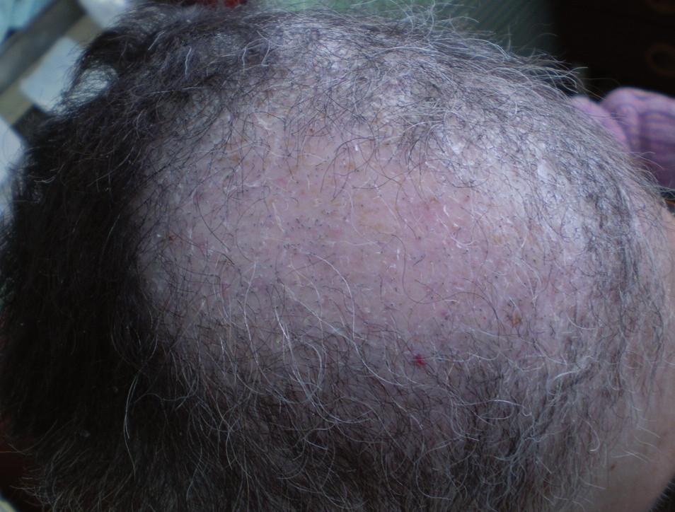 Alopécia androgénneho typu s výraznou xerózou u pacientky pri liečbe erlotinibom pre metastatický nemalobunkový karcinóm pľúc.