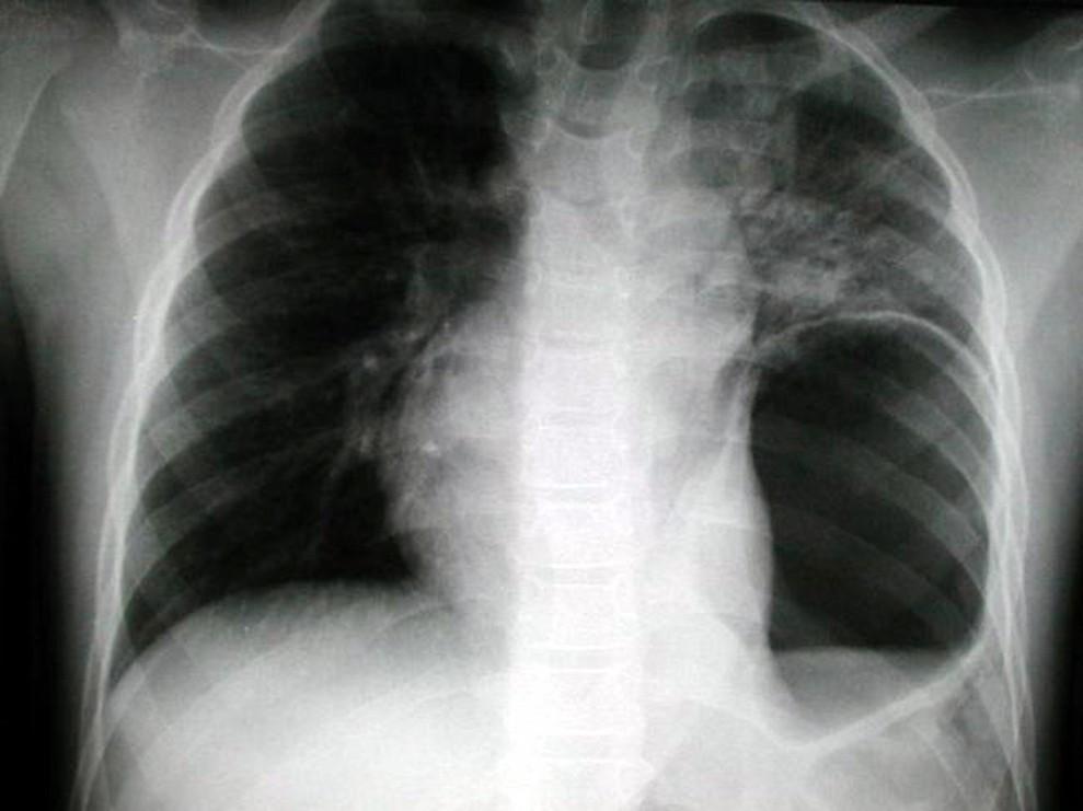 Ruptura bránice vlevo, útlak nitrohrudních orgánů prolabovaným žaludkem