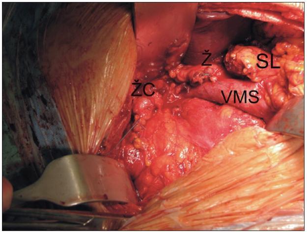 Pohled do operačního pole - stav po ukončené resekční fázi duodenopankreatektomie podle Whippla pro karcinom. Je patrný pahýl žaludku (Ž), pankreatu (SL) žlučových cest (ŽC) a kompletně vypreparovaná horní mezenterická žíla (VMS).