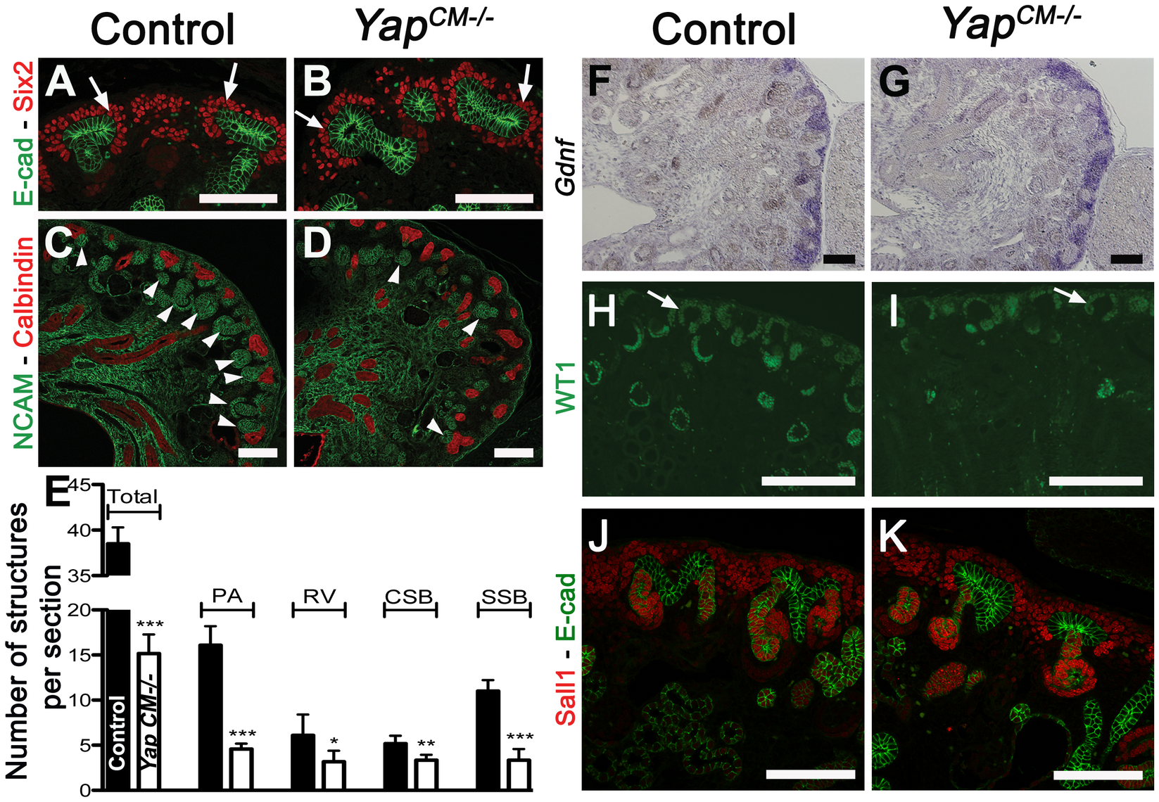 <i>Yap</i> deletion impairs nephron induction, without affecting self-renewal of the CM population.
