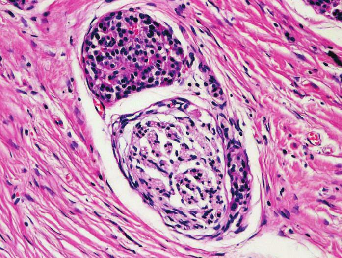 Struktura ostrůvku endokrinního pankreatu adherující k perifernímu nervu v terénu CP. Barveno hematoxylinem eozinem (zvětšení 200x).