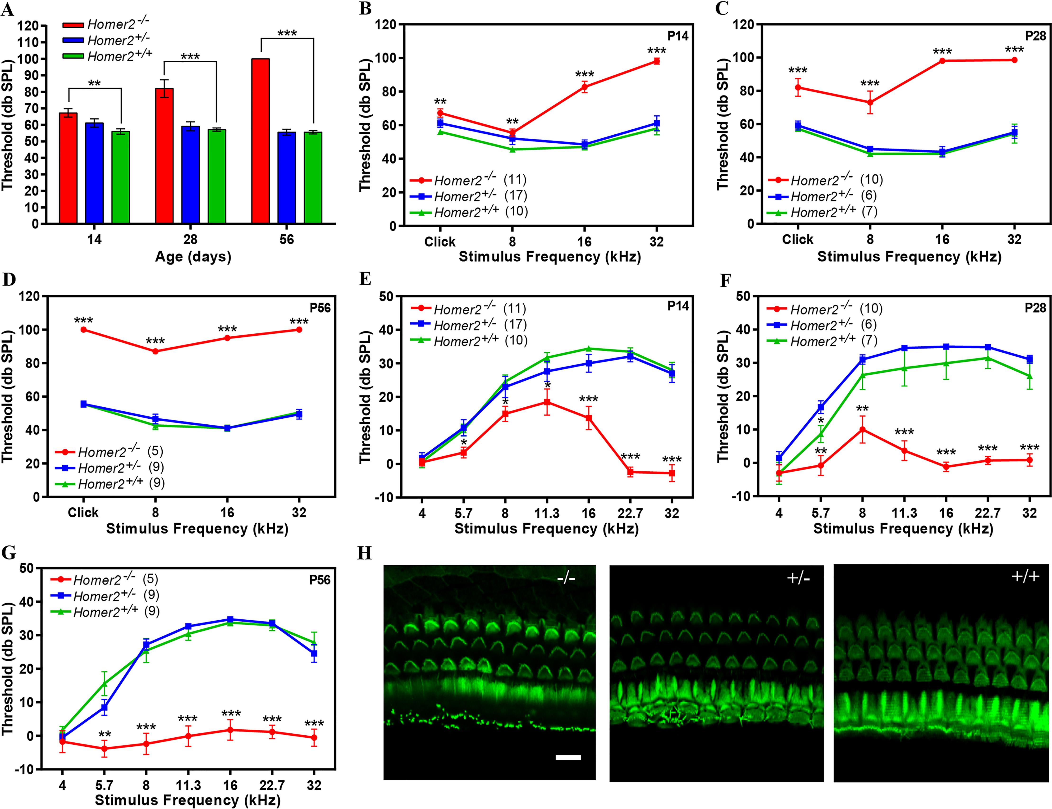 <i>Homer2</i><sup><i>-/-</i></sup> mice have early onset progressive hearing loss.