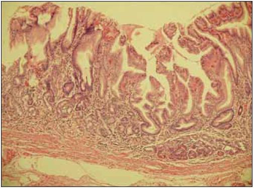 Průřez stěnou žaludku se známkami atrofie sliznice, s redukcí žlázové vrstvy, v lamina propria mucosae je vidět chronická zánětlivá celulizace. Zvětšení 100krát.