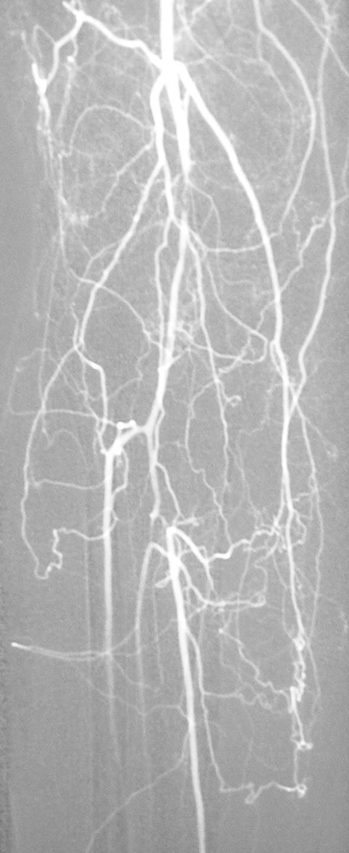Digitálna subtrakčná angiografia – kritická stenóza arteria poplitea a tractus tibiofibularis na pravej dolnej končatine Fig. 2. Digital subtraction angiography – a critical stenosis of the popliteal artery and of the tibiofibular tract on the right lower extremity