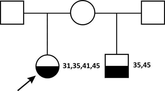 Dvě děti s hypodoncií ze dvou manželství matky s plným počtem zubů. Dcera má hypodoncii dolních středních řezáků (31,41) a druhých dolních premolárů(35 a 45), synovi chybí druhé dolní premoláry