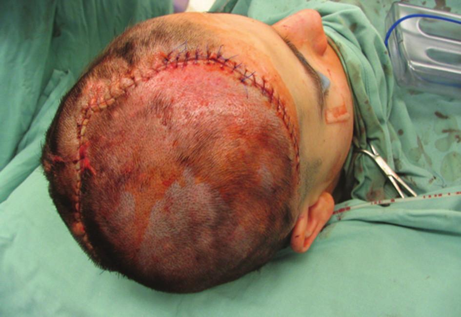 Pacient po explantaci tkáňového expandéru pro korekci posttraumatické alopecie