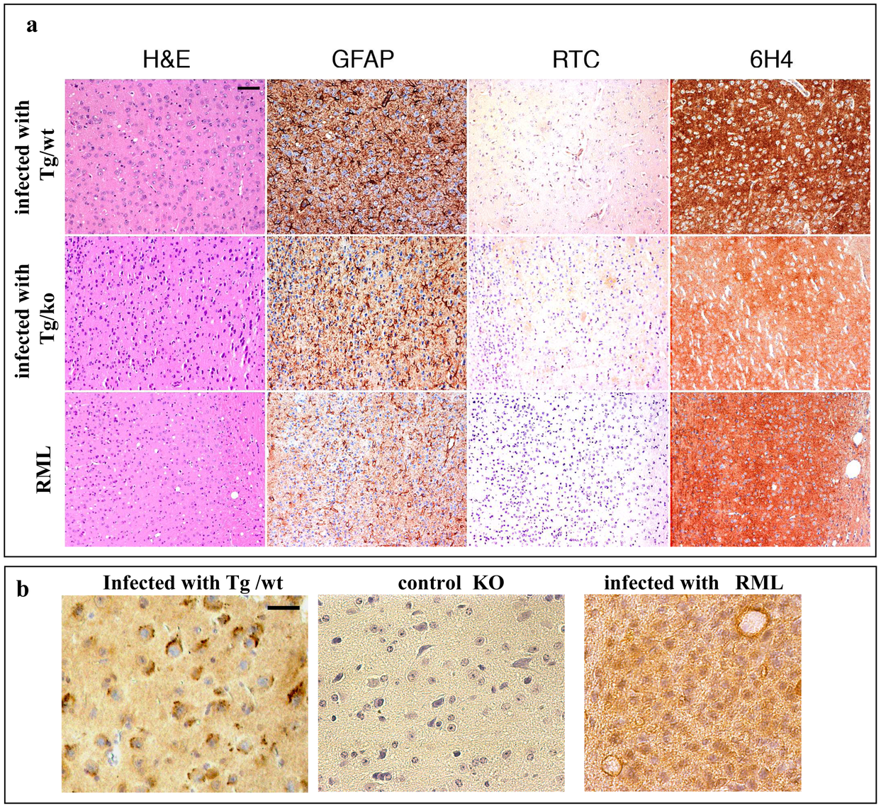 Transmission of TgMHu2ME199K prions to wt mice: pathology.