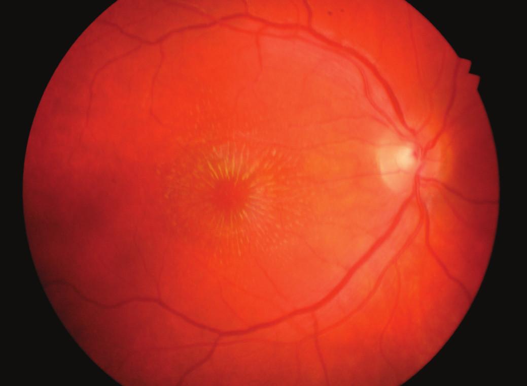 Vstupní nález hvězdicové makulopatie pravého oka