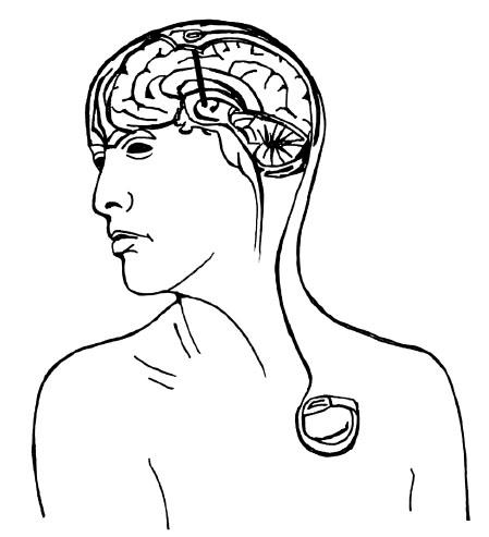 Schéma implantovaného stimulačního systému (elektroda, spojovací kablík, neurostimulátor)