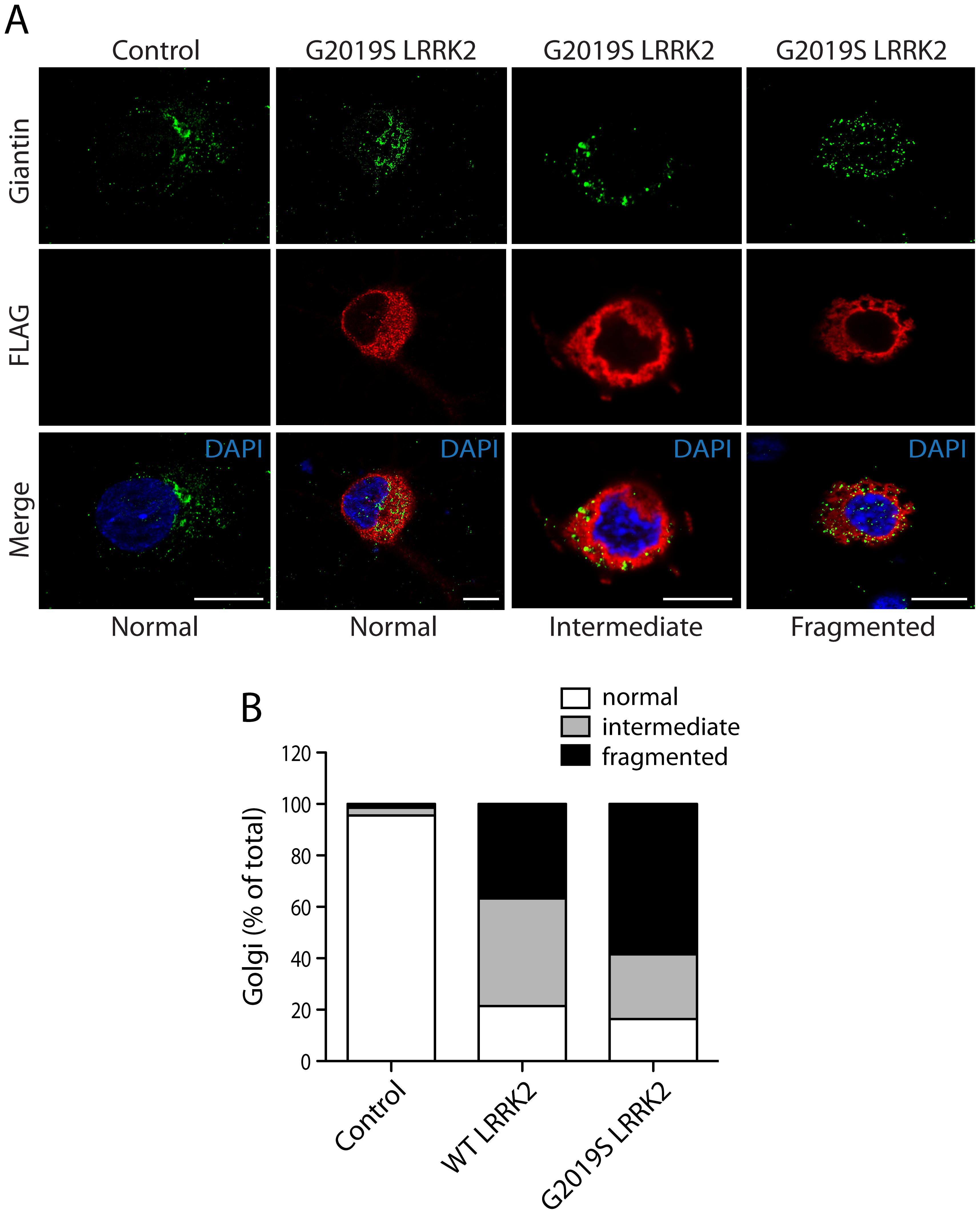 LRRK2 expression induces Golgi fragmentation in cortical neurons.