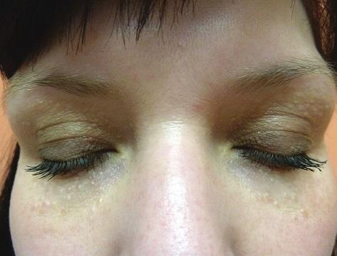 Syringomy v okolí očí