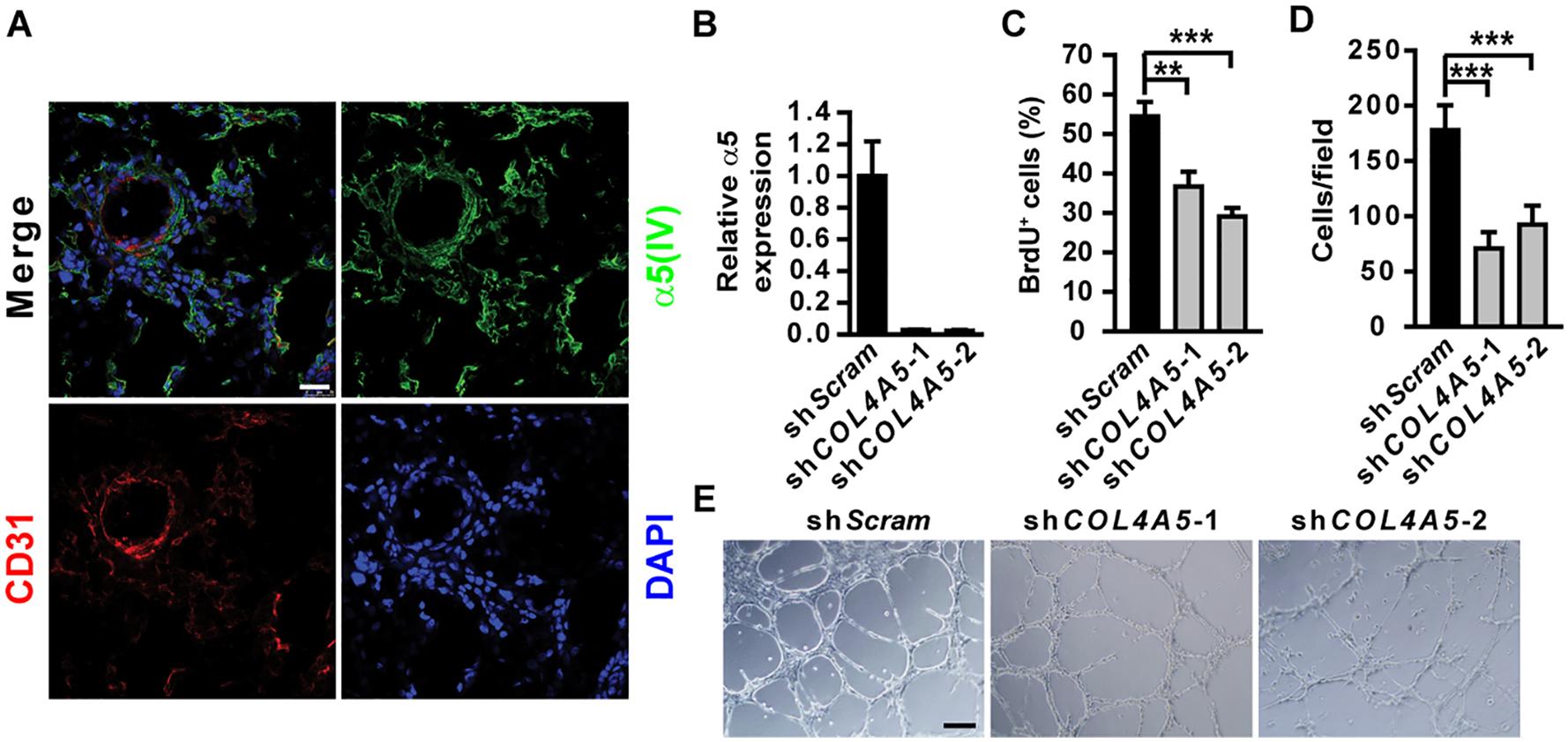 α5(IV) is expressed in endothelial cells and required for endothelial cell proliferation and tubulogenesis.