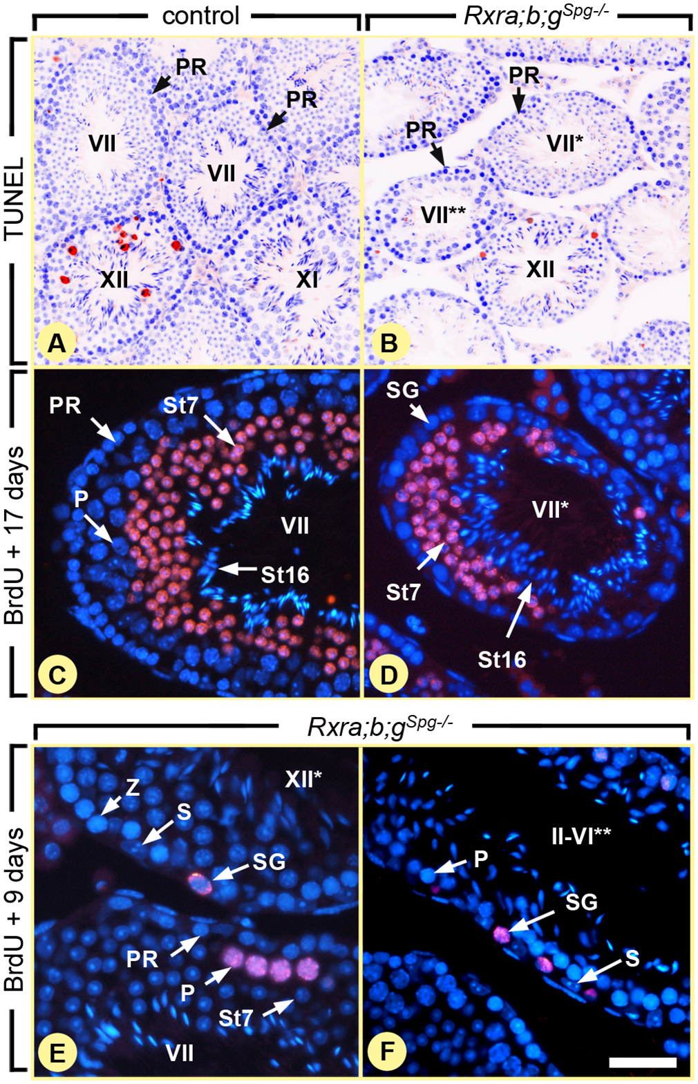 Ablation of RXR in spermatogonia blocks their division, but does not affect meiosis.