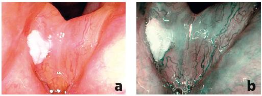 Porovnání zobrazení leukoplakie pravé hlasivky při flexibilní endoskopii bílým světlem (a) a při NBI endoskopii (b) – v NBI endoskopii benigní vaskularizace, Typ III, histologicky prokázána lehká dysplazie.