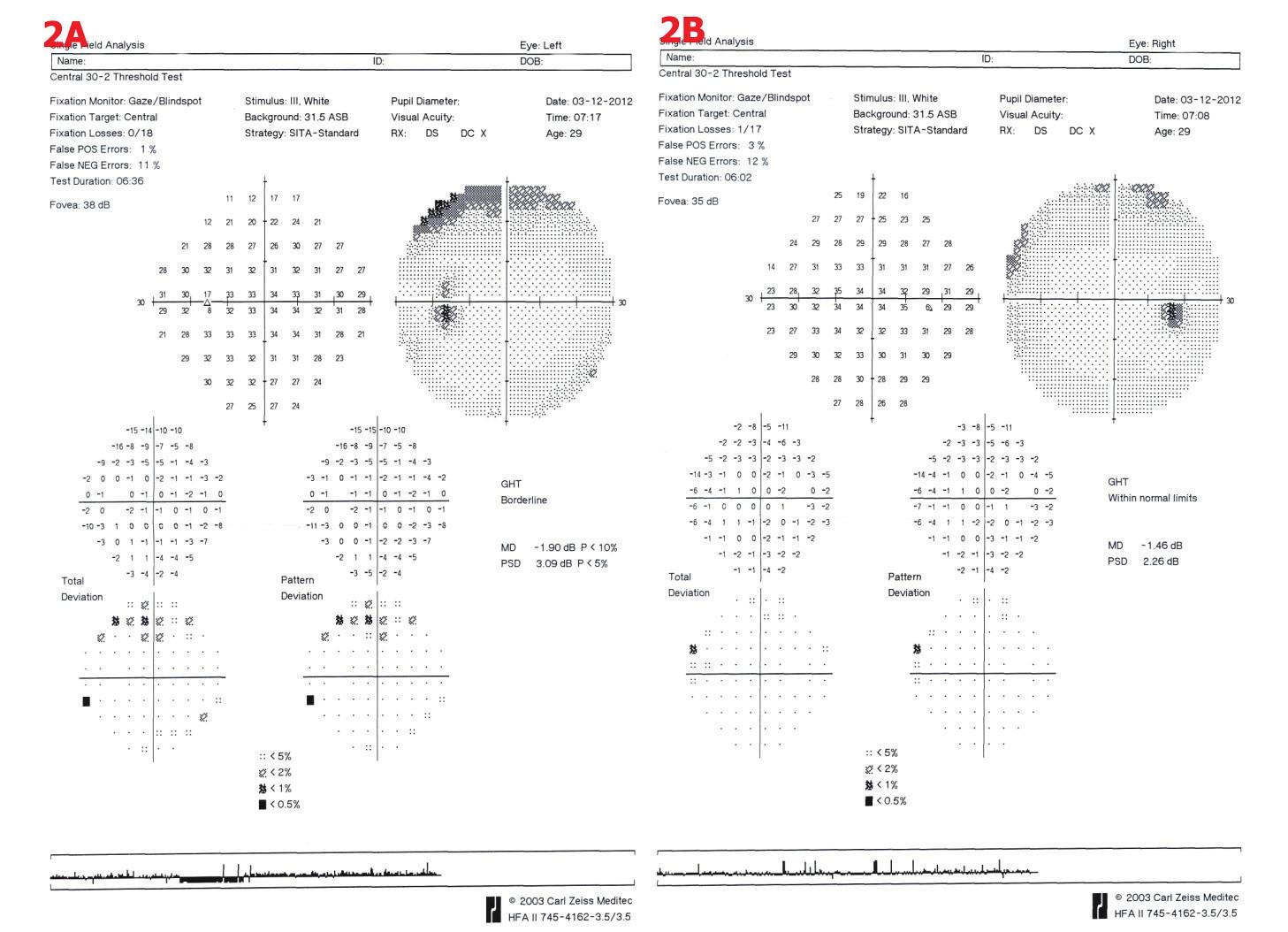 Perimetrické vyšetření u pacientky č. 2. 2A – OL – náznak horního arkuátního skotomu, 2B – OP – drobné relativní horní skotomy