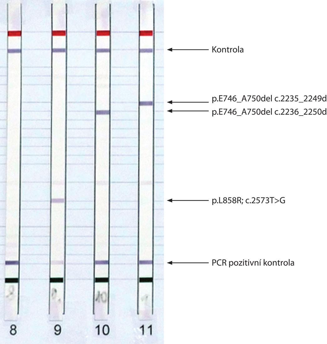 Výsledky analýzy mutací genu EGFR získané metodou real-time PCR (E746_A750del ve vzorcích A a C) (A) a metodou reverzní hybridizace s vyznačenými detekovanými mutacemi (B).