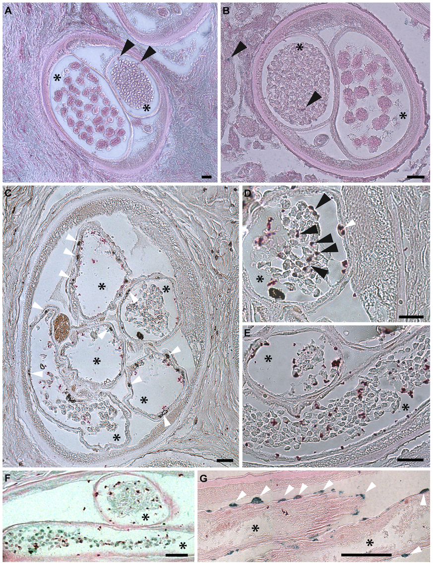 Apoptosis and apoptotic bodies are detected in <i>O. volvulus</i> tissues from human nodules of doxycycline treated patients.